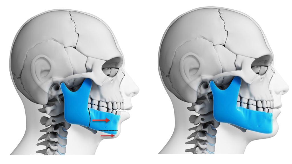 Ortodonti Bostanlı Izmir - Izmir Bostanli